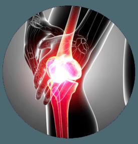 avis artroser